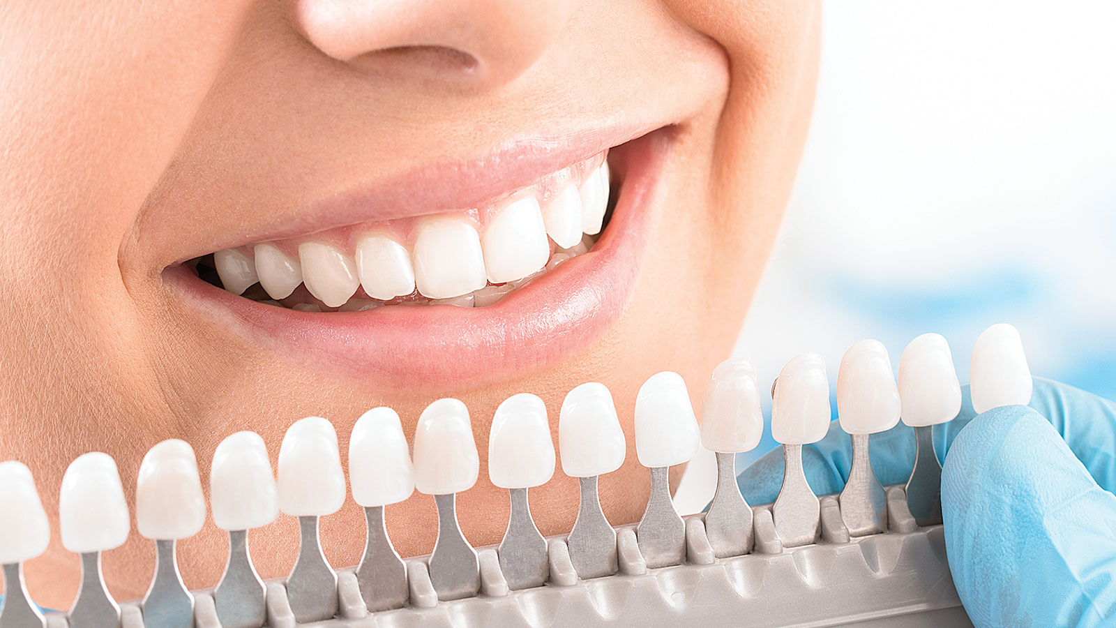 Tooth-coloured Fillings and Reshaping